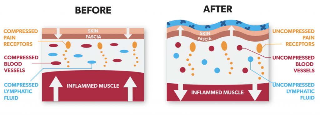 How Does Kinesiology Tape Work? K Tape Effects on the skin diagram showing lifting effect.